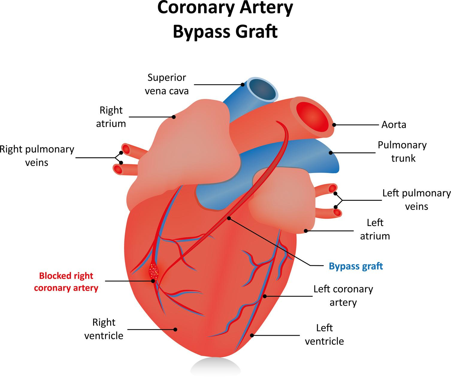 Coronary Artery Bypass (Conventional)