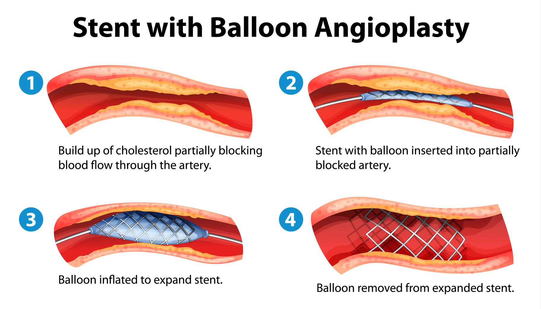 Balloon Angioplasty and Stent Placement